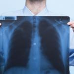 evde röntgen 150x150 - İletişim
