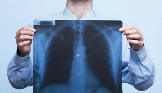evde röntgen